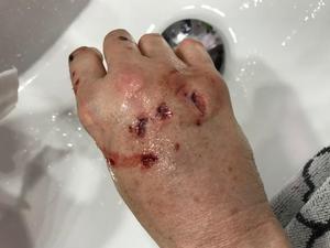 Kjertis hand dagen efter attacken. Bild: Privat.