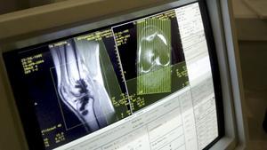 Magnetröntgenbilder av knäled, fotled och nyckelben bedöms som säkrare för att bestämma en människas ålder än de röntgenbilder av tänder och händer som hittills använts.