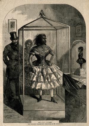 Juliana Pastrana i ett träsnitt från 1862, en av samtiden mest kända kvinnor.
