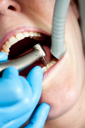 Socialstyrelsen sa nej till tandläkarens begäran om prövning, och nu också förvaltningsrätten i Stockholm.