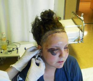Efter operationen häftades huden ihop med 54 klamrar.