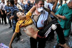Skadad. Hittills har minst 700 palestinier dödats under den israeliska bomboffensiven i Gaza.