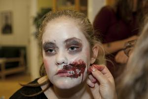Men Thea Jegreus får inte bara ett vanligt sår. Istället har hela hennes mun flyttats ut på kinden.