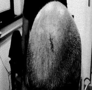 Mannen fick ta emot ett tiotal hugg och sys på flera ställen, bland annat i bakhuvudet.