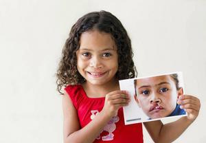 Organisationen Operation Smile genomför operationer i utvecklingsländer på barn och vuxna med ansiktsmissbildningar.