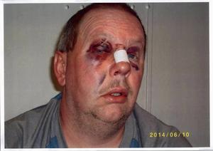 Livstidsdömde Anders Eklund utsattes för en misshandel i fängelset i somras.