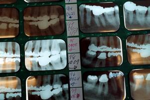 Att åldersbestämma med hjälp av röntgen av handleder, nyckelben och tänder ger inte ett tillförlitligt resultat.