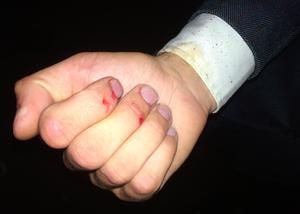 Bandet Shitfucks spelade tills fingrarna blödde. Här är gitarristen Patrik Lantzs hand.