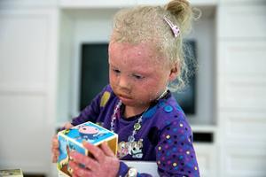 Tindrah ett vanligt barn men ändå inte. Hon får leva med den sällsynta sjukdomen iktyos resten av livet.
