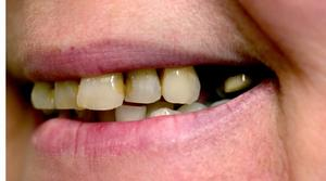 att dra ut en tand