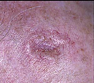 Ett exempel på basalcellscancer.