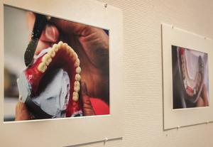 Thomas Lindberg har fotograferat tandproteser.