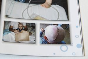 Vid operationen i Umeå var läkarna tvungna att skära upp hela skallen på Viggo för att kunna åtgärda skadan.