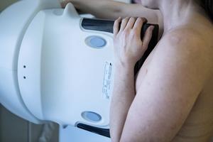 Flera steg för förbättrad bröstcancervård.