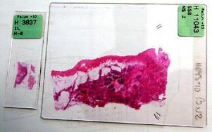 Ett storsnitt av ett bröstcancerprov jämfört med ett vanligt till vänster.