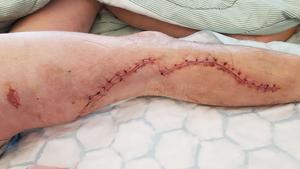 Efter operationerna ser Johnny Berströms sår på benet ut så här.