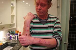 Armarna har stora utslag och sår