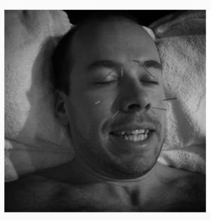 Emil Jönsson lade själv ut en bild på Instagram där han får akupunkturbehandling.