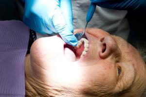 Efter knappt två timmar hos tandläkaren sitter den nya tanden på plats.