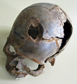 Utöver pilar och spjut användes också trubbigt våld, som denna skalle visar där någon fått skallbenet krossat, kanske av en klubba. Rester från minst 130 människor, alla unga män, har hittills hittats på platsen.   Foto: Detlef Jantzen, Landesamt für Kultur und Denkmalpflege Mecklenburg-Vorpommern/TT