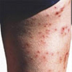 Badklåda orsakas av parasiter och kan drabba människor i samband med bad i sötvattensjöar och i bräckt vatten.