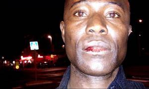 Emmanuel Touré blev först kallad neger och fick sedan ett knytnävsslag i ansiktet. Han började blöda och fick rejäla smärtor av slaget.