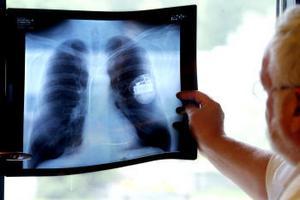 Så här ser det ut när pacemakern är på plats och de tre