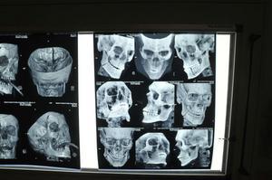 Ett slag eller en spark mot huvudet kan ge fruktansvärda konsekvenser.