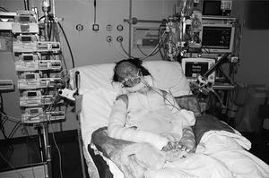 Sara Rasmusson ligger nedsövd på intensivvårdsavdelningen i Linköping i flera dagar – kroppen är inlindad i skumgummiliknande bandage för att dämpa stötarna mot de öppna brännsåren och hon opereras gång på gång.