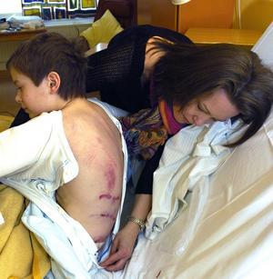 Mamma Julia Frisk kollar sonen Olles rivmärken på ryggen.