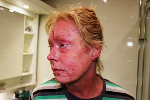 Kristina Wahlström anser att läkarna inte tar hennes sjukdom på allvar.