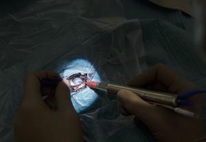 Veterinär Karin Berggren slår sönder och suger ur det grumliga materialet ur ögat.