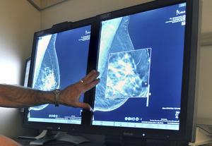 De vanligaste cancerformerna är bröstcancer och prostatacancer. 2014 konstaterades i Gävleborg 210 fall av bröstcancer och 360 fall av prostatacancer, skriver artikelförfattarna.