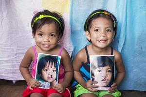 Barn med ansiktsmissbildningar som gjort lyckade operationer genom organisationen Operation Smile.