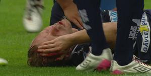 Jesper Florén blödde kraftigt efter Markus Rosenbergs armbåge.
