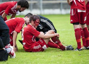Linus Bolin gjorde 3–0 till Falu FK, men nickade samtidigt ihop med en motståndarback. Blodet forsade och Bolin tvingades åka till lasarettet för att sy.