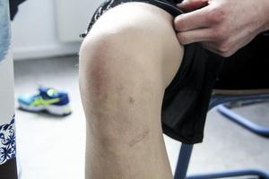 Filip Enarsson skadade korsbandet och menisken i det högra knät när han spelade Intersport cup i Iggesund i januari.