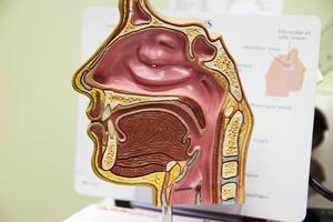 Många som drabbas av stroke får problem med att svälja.