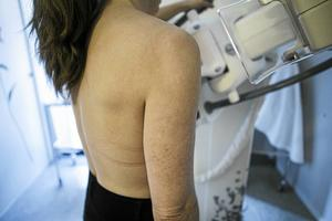 Mammografi var en av många som försvann från Sollefteå sjukhus, skriver skribenten.