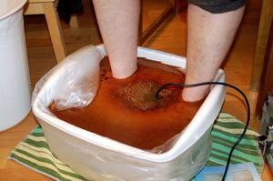 Detoxfotbad kan se ut så här. Fotbadet fungerar så att positiva och negativa joner alstras genom en svagströmsspole som placeras i vattnet. Genom fötternas 2000 (2000 porer på vardera fot) startas en utrensningsprocess av slaggprodukter, en del kommer ut i vattnet och en del via kroppens naturliga vägar.
