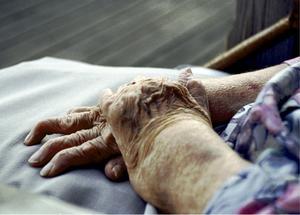 Mer forskning behövs för att minska lidandet hos personer med reumatoid artrit, anser skribenterna.
