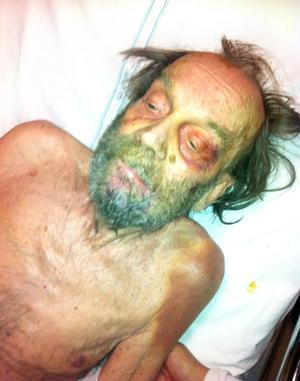 Bengt Carlsson var undernärd och i mycket dåligt skick när han kom till sjukhuset.