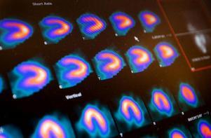 Det undersökta hjärtat framträder i bilder på skärmen. Den intensivare röda färgen visar var det samlats mest radioaktiva isotoper.