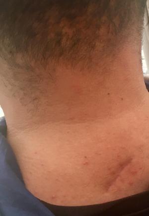 Hassans nacke med ärret efter knivhugget som dömde honom till ett liv i rullstol.