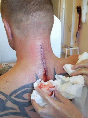 Under en månad på Umeå sjukhus  behandlades det stora ärret efter operationen.