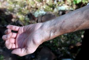En av Europas bästa handkirurger opererade Stefan och såg till att skadorna inte blev så allvarliga som befarats.