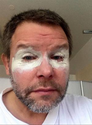 Janne Hellström på sjukhuset med en salva runt ögonen för att lindra frätskadorna.
