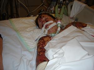 På sjukhuset 2006. Alexandra Andersson låg nedsövd på Akademiska sjukhuset i Uppsala under fyra veckor när meningokockinfektionen och blodförgiftningen härjade som värst i hennes kropp.