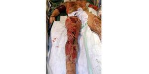 Andreas Neuman fick amputera ena benet och fick svåra brännskador även på resten av kroppen. Det gör att han än i dag har kraftiga fantom- och nervsmärtor.