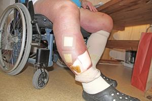 När Lars Anderssons ben svullnar upp och vätskan drivs ut, uppstår sår på benen som kräver ordentliga plåster.